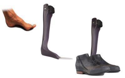 Orthopedische schoen – Knie-enkel-voet-orthese (KEVO)