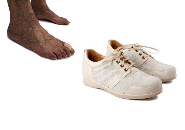 Semi orthopedische schoenen – Voetproblemen