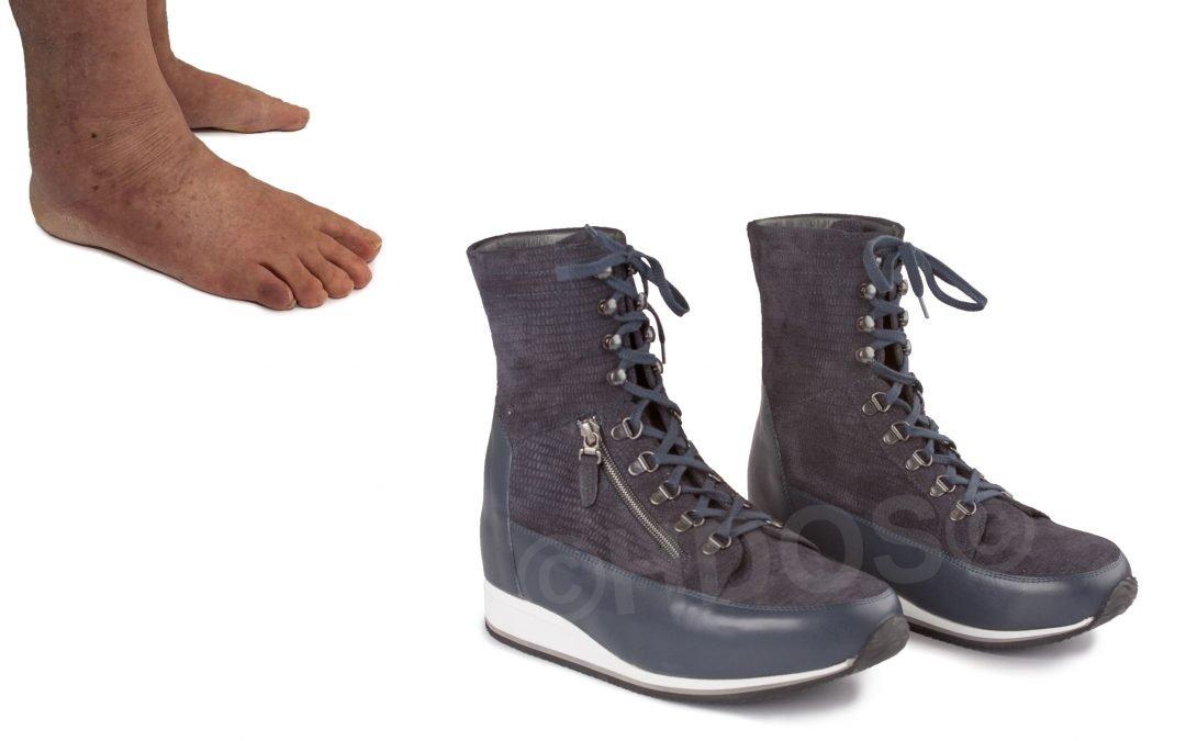 Orthopedische schoenen – standafwijking en artrose